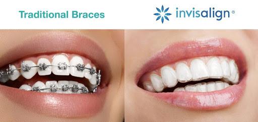 Invisalign near me braces vs invisalign